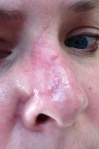mohs surgery, nose